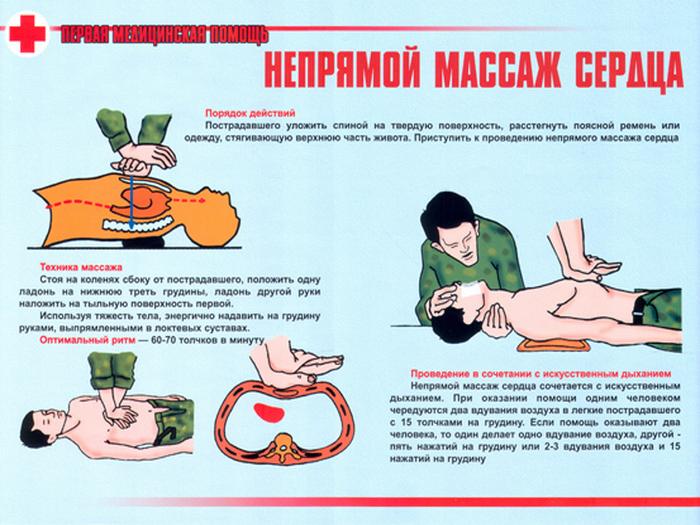 ПДД медицинская помощь - непрямой массаж сердца