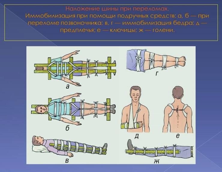 ПДД медицинская помощь - наложение шины при переломах